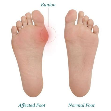 what is planters foot all you need to about bunions justbunions