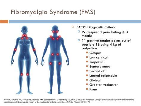trigger points fibromyalgia diagram diagram of fibromyalgia fibromyalgia chronic