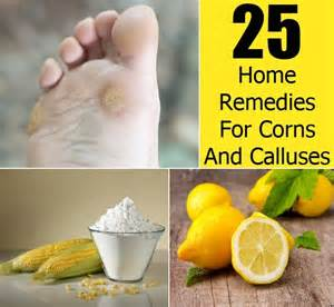 25 effective home remedies for corns and calluses diy