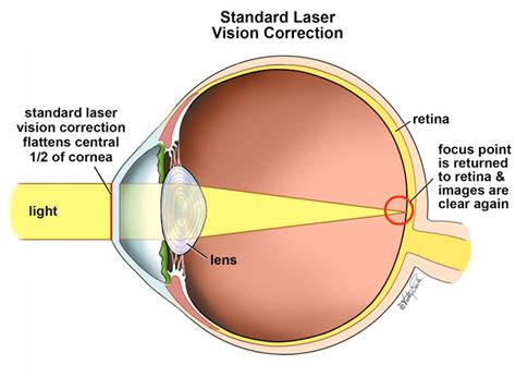 does eye color affect peripheral vision what is custom lasik