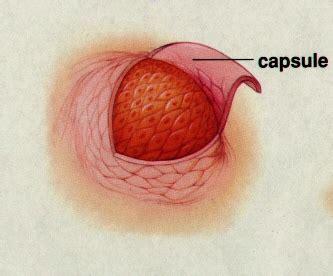 benign tumor on biology of cancer