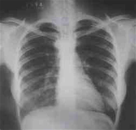 rx horizonte imagenes medicas y odontologicas niveles de dosis en estudios de t 243 rax posteroanterior