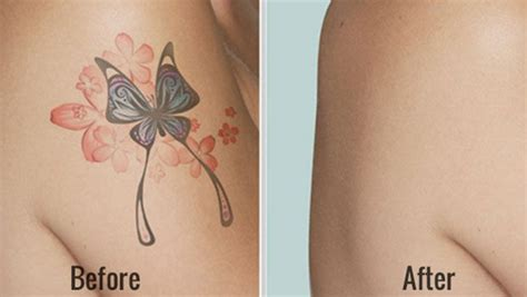 ways of removing tattoos how to remove tattoos at home fast 28 ways