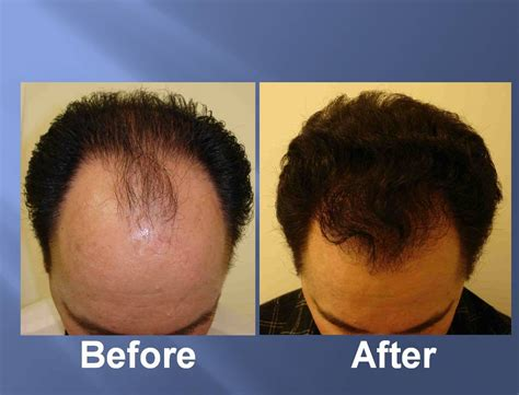hair transplant before and after hair transplant before and after pictures