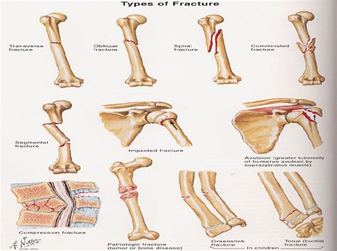 Alat Tes Kepadatan Tulang rs siaga raya 187 fraktur patah tulang