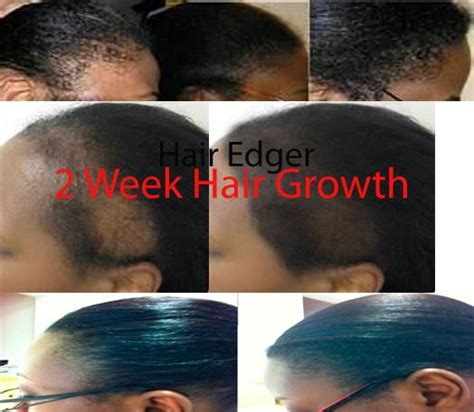 jamaican castrol oil 6 month results jamaican black castor oil results pictures to pin on