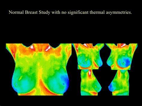 infrared thermal digital infrared thermal imaging