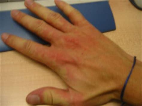 macchie da intossicazione alimentare le malattie della pelle