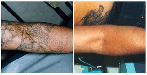 bye bye tattoo tattoo removal before and after pinterest