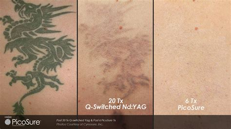 tattoo removal industry regret sparks removal industry growth in