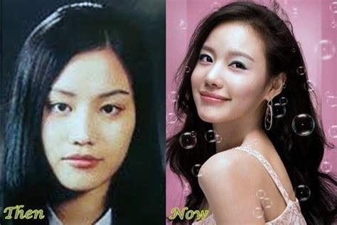 korean actress that did plastic surgery best 5 korean plastic surgery before and after photos