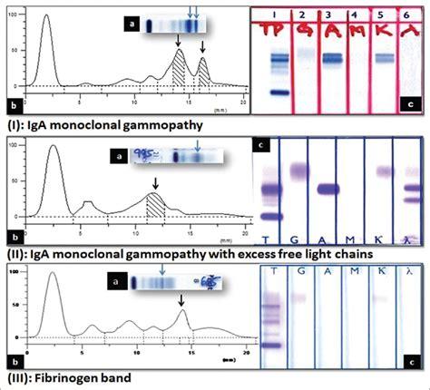 s protein electrophoresis interpretation immunoglobulin a gammopathy on serum electrophoresis a