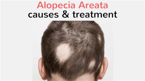 alopecia areata causes alopecia areata causes and treatment healthveins