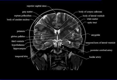 cross sectional brain anatomy brain anatomy mri coronal brain anatomy free mri cross
