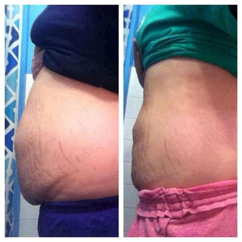 Weight Loss After C Section by Let Me Help You Get Get Pricing On All