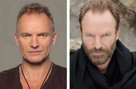sting hair transplant beards before and after celebrity edition