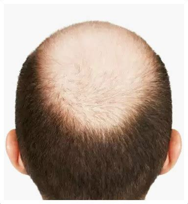 male hair loss pattern due to stress dr pizarro male pattern baldness