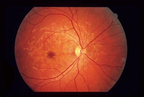 macular pattern dystrophy the retina reference pattern dystrophy retina image bank