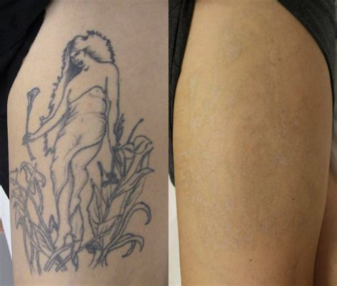 after tattoo removal temoval before and after pictures removal