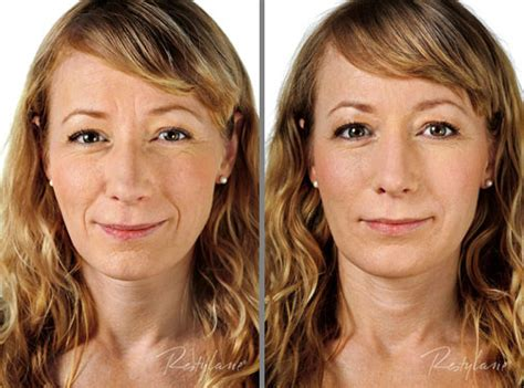 hairstyles for nasalfabial folds restylane acceptable for lip augmentation says fda panel