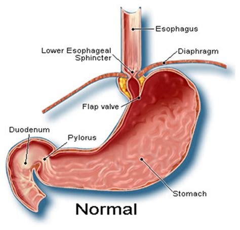 hernia surgery cost india surgery gastric hiatus hernia cost gastric hiatus hernia surgery
