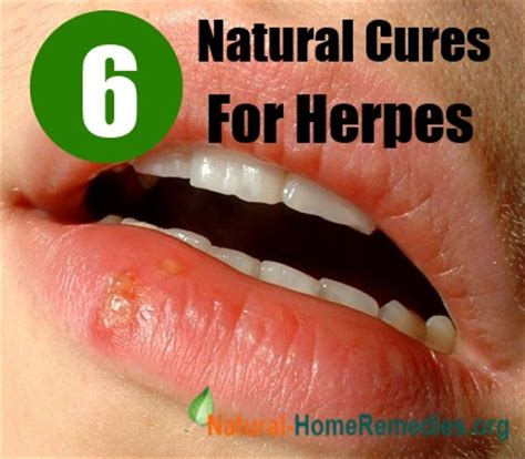 6 effective cure for herpes how to cure herpes
