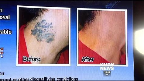tattoo removal fresno ca removal program helps former members rebuild
