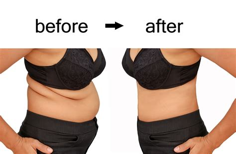 weight loss spa chicago how tummy tuck chicago ellehomme holistic med spa