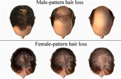 hair loss in women 6 signs of hair loss in women