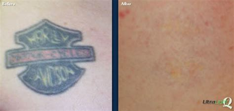 tattoo removal memphis removal tn the langsdon clinic germantown