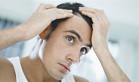 celevenus hair loss 187 category 187 types of hair loss