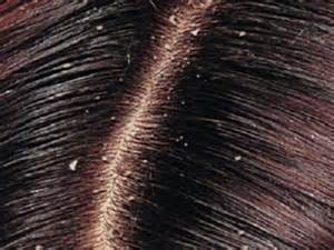 best dandruff shoo for colored hair why scalp does it promotes hair growth add