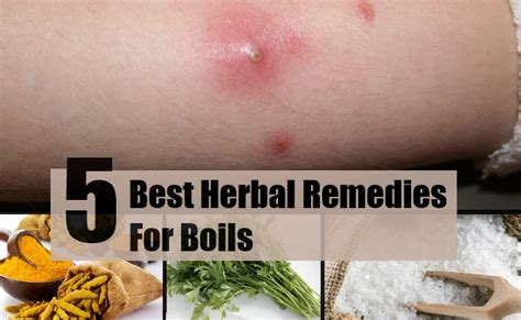5 best herbal remedies for boils treatments cure for