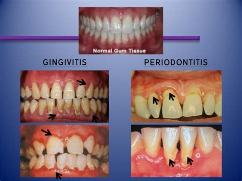Pelindung Gigi Bruxism Pendidikan Kesihatan Pergigian 1 3
