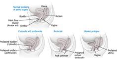prolapse diagram pelvic organ prolapse on pelvic floor