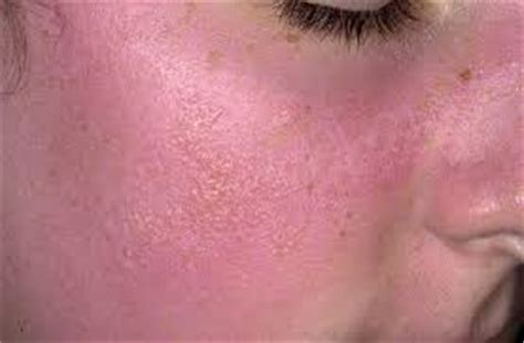 sun poisoning from tanning bed sun poisoning rash treatment pictures what to do how