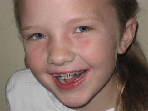 Young Teen Girl Face With Braces | very young little girls braces hot girls wallpaper