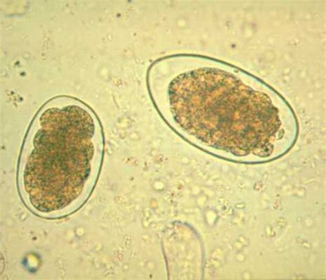 Hookworm Eggs In Stool by Miscellaneous Nematodes