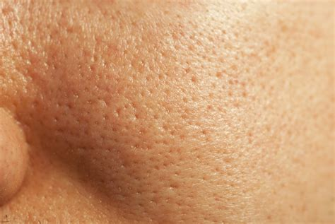 U And Your Skin by What You Can Do About Large Pores By And Skin
