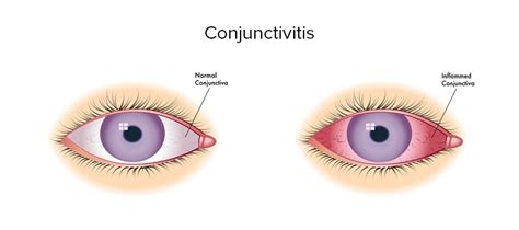 pink eye this monsoon protect your from dangerous infections lifestyle fashion and