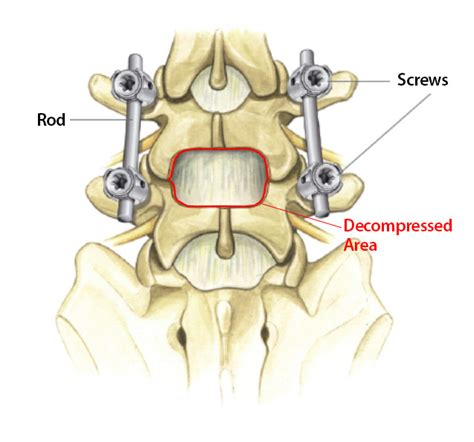 spinal stenosis diagram treatment options available for lumbar spinal stenosis