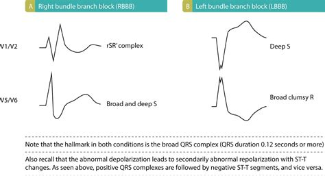 ecg pattern meaning left bundle branch block lbbb ecg criteria causes