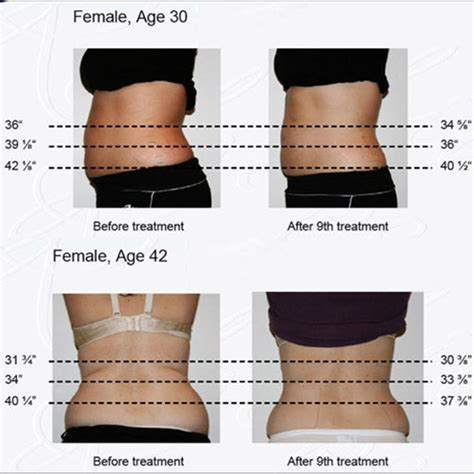 light therapy weight loss reviews weight loss coolsculpting cryolipolysis slimming machine