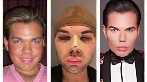 human ken doll before and human ken doll plastic surgery nose gone wrong or not