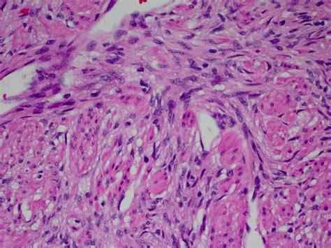 Gastrointestinal Stromal Tumor Pathology Outlines by Gastrointestinal Stromal Tumor Pathology Outlines Seo Trainee Cover Letter