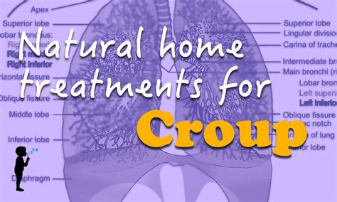 home treatments for croup naturopathic pediatrics