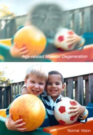 Ls For Macular Degeneration by Low Vision Aids Of Hearing Magnifiers Assistive