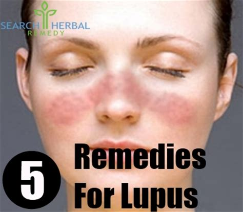 5 remedies for lupus how to treat lupus naturally
