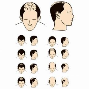 female pattern hair loss birth control feed your health hair loss reasons remedies