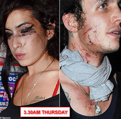 Bloodied And Bruised Winehouse Stands By Husband Who Saved by Bloodied And Bruised Winehouse Stands By Husband Who